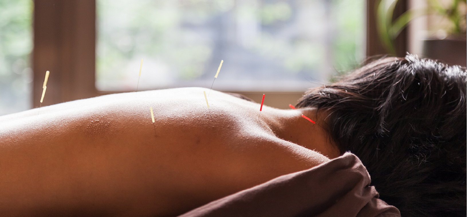Acupuncture & Moxibustion